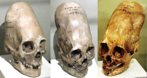 Three Paracas Necropolis Culture skulls, showing different shapes produced by head binding